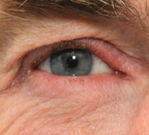 Eyelid Conditions Face And Eye