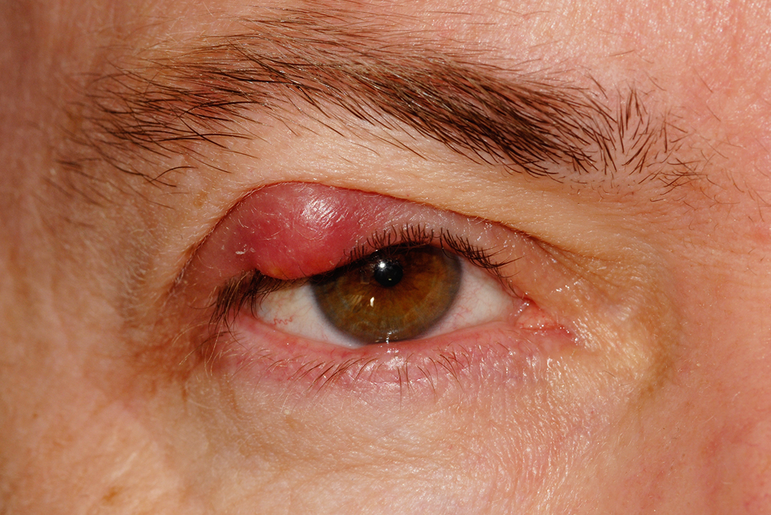 Self Pay Treatment Of Eyelid Cyst Manchester Face And Eye