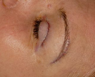 Brow lift surgery | Face And Eye