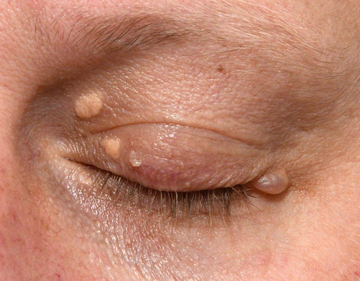 Eyelid-lesions-for-website-1200x937.jpg
