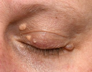 Lumps, bumps & lesion removal | Face And Eye