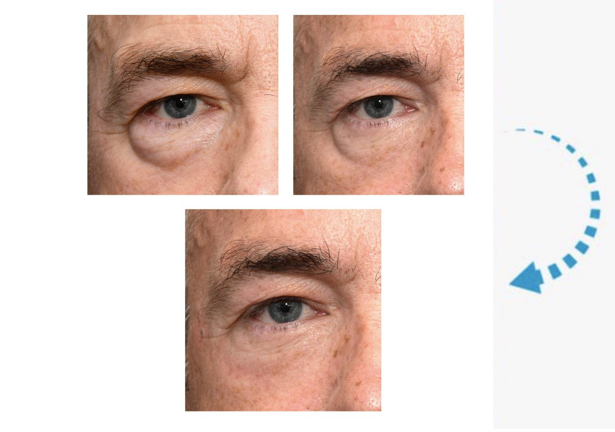 Before-and-after-lower-lid-blephs-and-Restylane-showing-one-side-only-1200x843.jpg