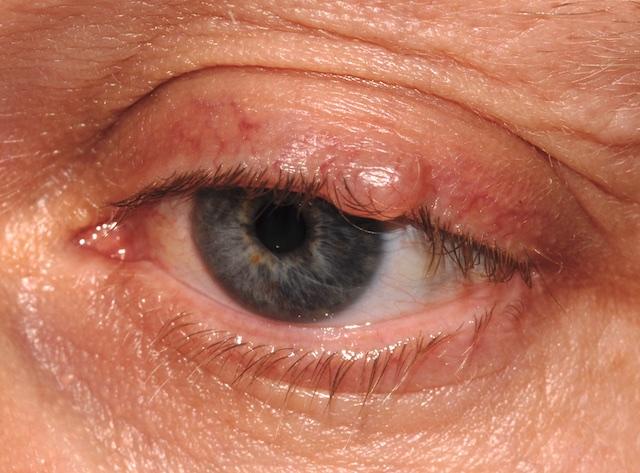 Cyst-of-Moll-099.jpg
